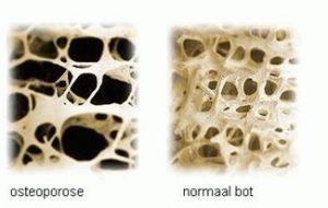 normaal bot en osteoporose